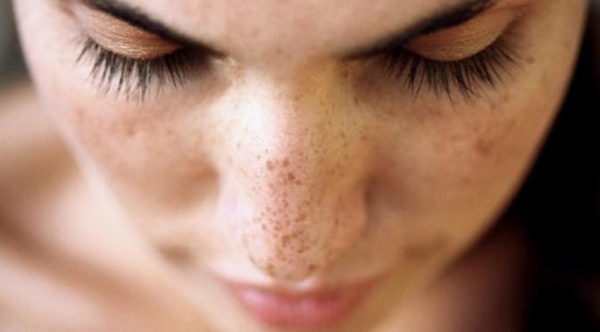 beauty tip, como prevenir as manchas no rosto, produtos antimanchas, beleza